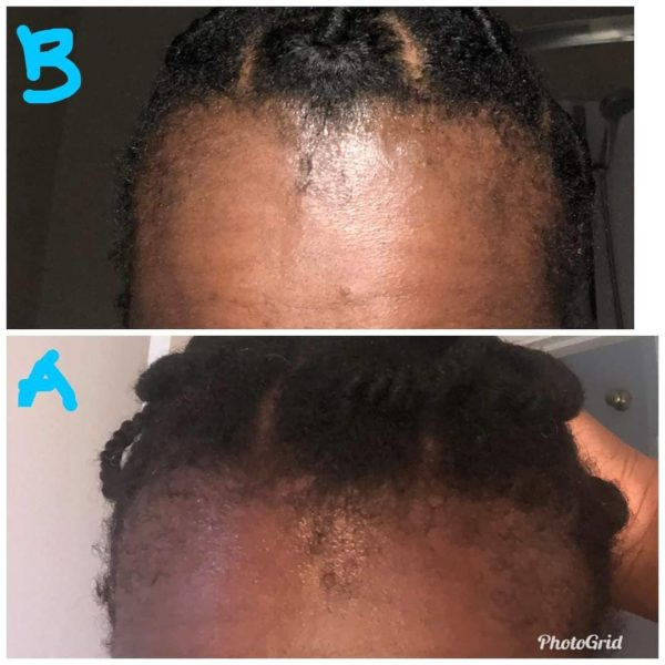 Reina hair care hair growth elixir before and after review